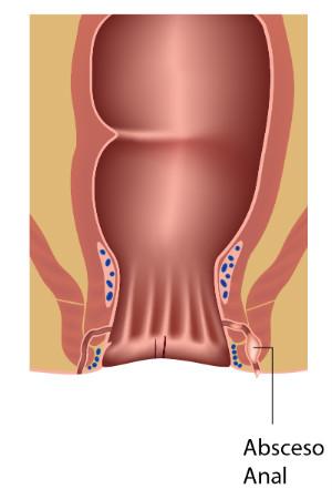 Tratamiento de abscesos - Instituto Proctológico Doctor Padrón
