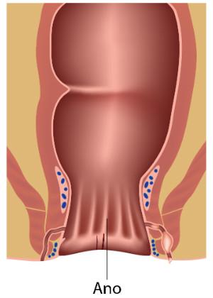 Tratamiento de Condilomas - Instituto Proctológico Doctor Padrón