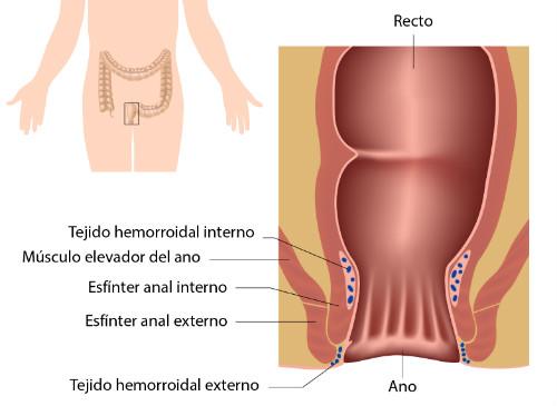 Tratamiento del síndrome del elevador - Instituto Proctológico Dr. Padrón