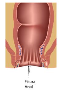 Tratamiento de fisuras - Instituto Proctológico Doctor Padrón